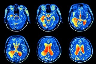 Neuroimaging and Depression - Shier Private Practice